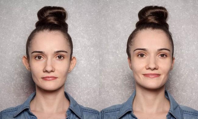 foto de antes e depois de otoplastia