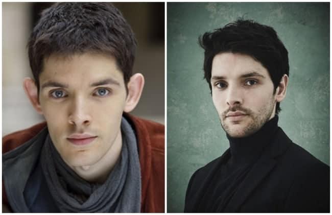 antes e depois de cirurgia de otoplastia Colin Morgan