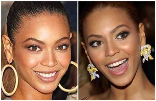 antes e depois otoplastia Beyonce