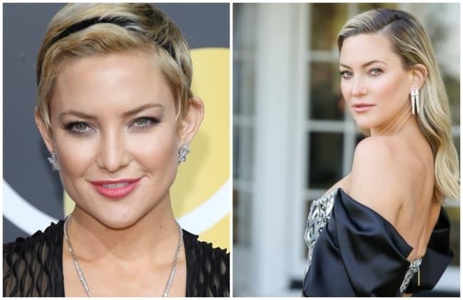 antes e depois de cirurgia orelhas Kate Hudson