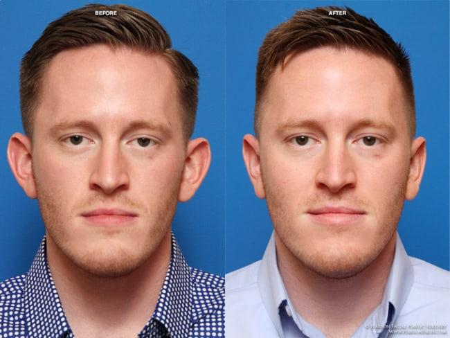 antes e depois de cirurgia de otoplastia masculina