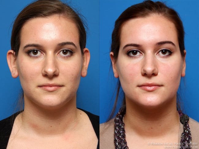 cirurgia de otoplastia feminina