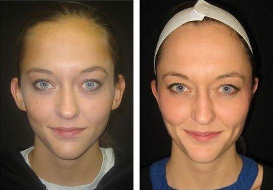 resultado pos cirurgia otoplastia