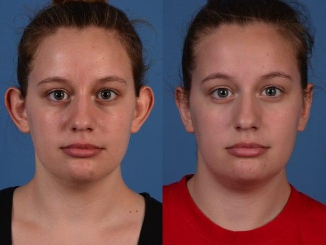 cirurgia de otoplastia antes e depois