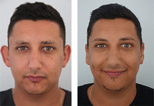 foto antes e depois de cirurgia de correcao de orelhas masculina