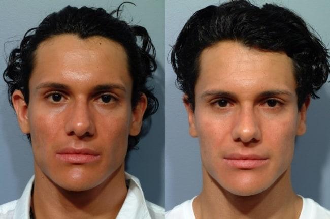 foto antes e depois de otoplastia masculina
