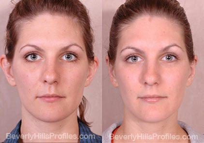foto de antes e depois de cirurgia de otoplastia