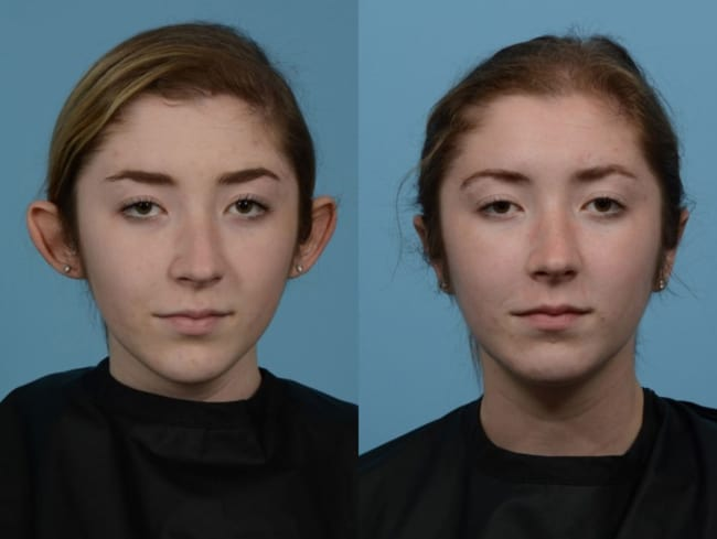 foto antes e depois de cirurgia plastica nas orelhas