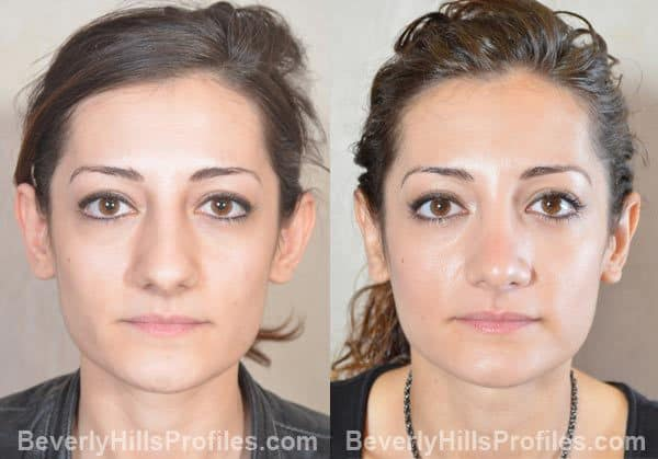 antes e depois de cirurgia de correcao das orelhas