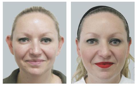 cirurgia de otoplastia