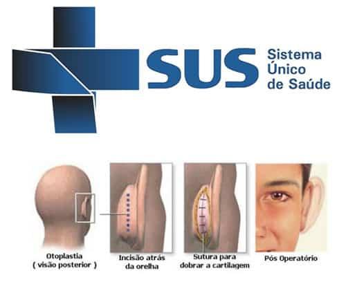 cirurgia de otoplastia pelo SUS