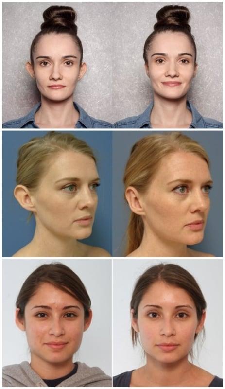 resultados de antes e depois de otoplastia