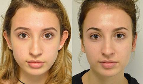 cirurgia antes e depois nas orelhas