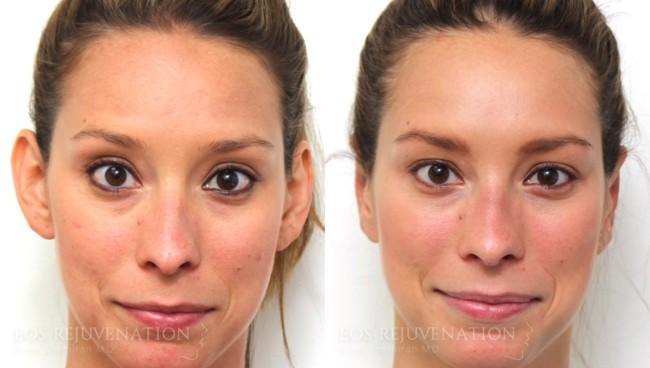 antes e depois de otoplastia