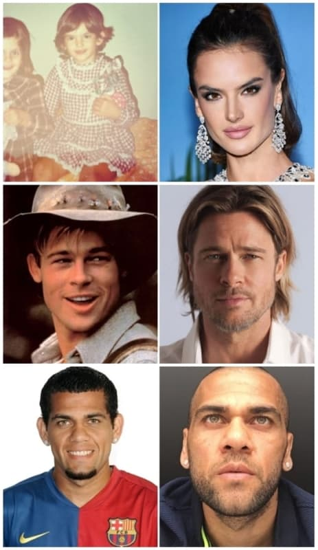 otoplastia famosos