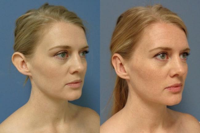 resultado de cirurgia de correcao de orelhas
