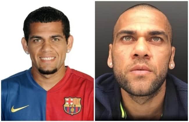 antes e depois de cirurgia de otoplastia famosos