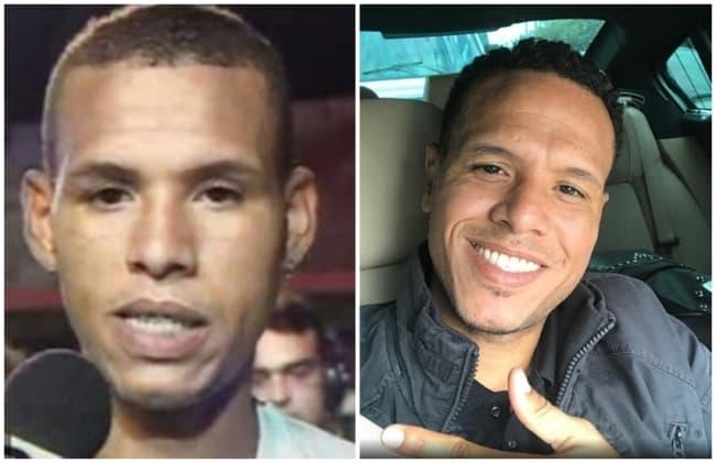 antes e depois de otoplastia jogador de futebol