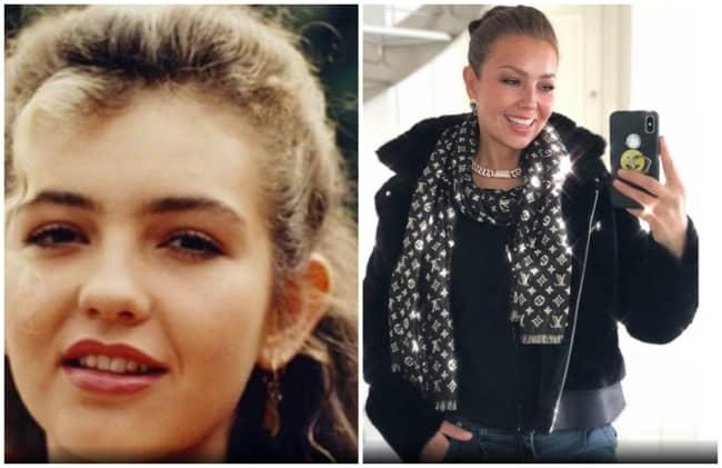 antes e depois de cirurgia otoplastia famosos