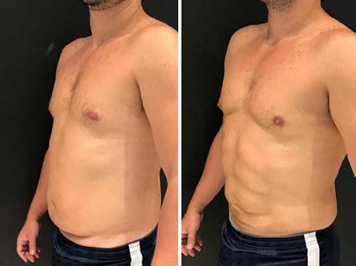 antes e depois de LAD masculina