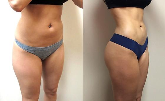 resultado de corpo definido com cirurgia plastica
