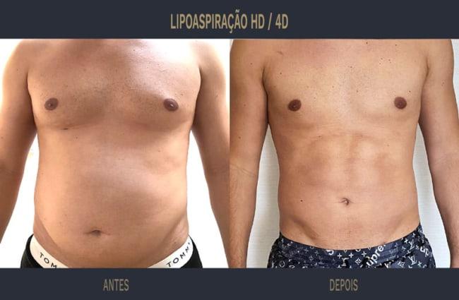 antes e depois de lipo HD em homem