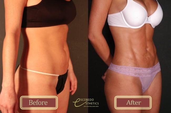 antes e depois de lipo de alta definicao na barriga