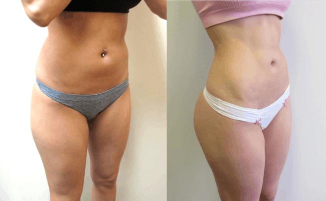 antes e depois de barriga feminina lipo HD