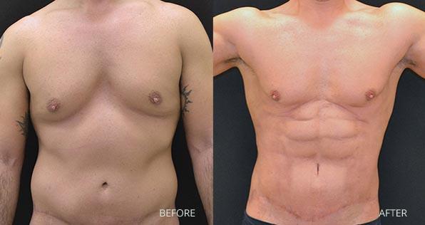antes e depois de lipo de alta definicao masculina
