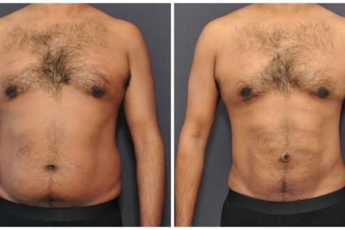 antes e depois de LAD em homem