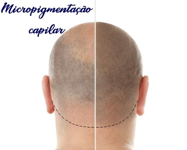 micropigmentacao capilar