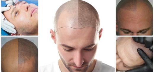 micropigmentacao masculina