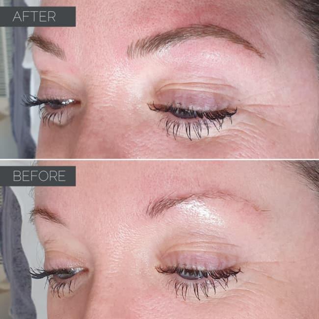antes e depois de micropigmentacao em sobrancelha com falhas