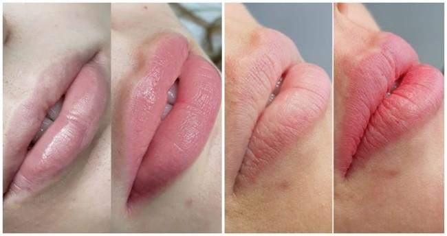 preco de micropigmentacao labial