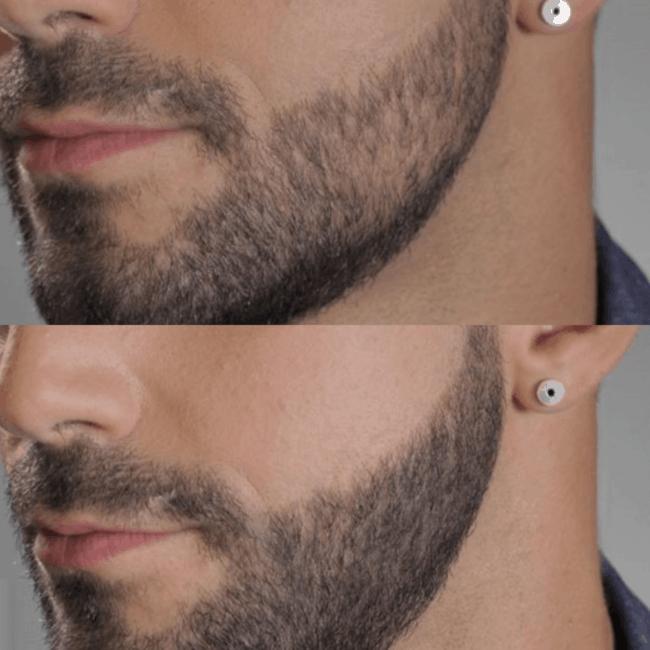 antes e depois de micropigmentacao na barba