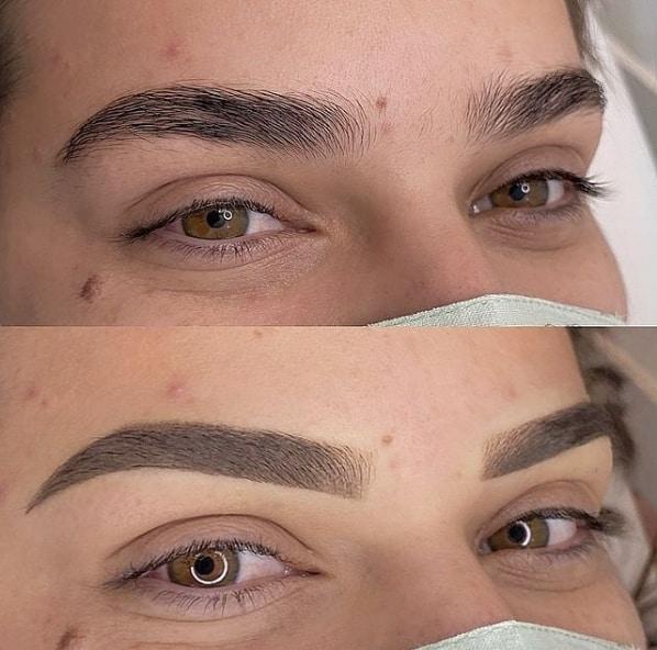 antes e depois de preenchimento de sobrancelhas com tecnica shadow
