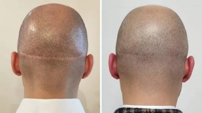 micropigmentacao capilar em cicatriz
