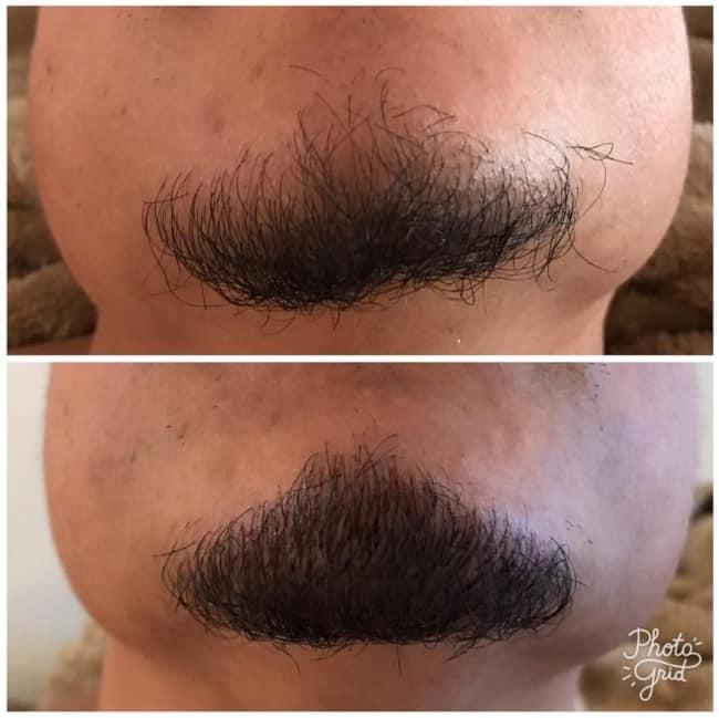 resultado de preenchimento da barba