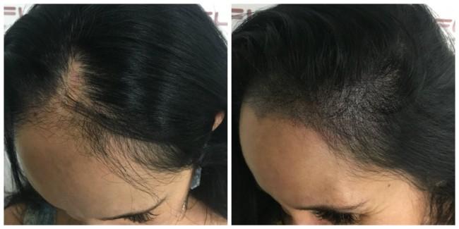 antes e depois de micropigmentacao capilar feminina em cabelo preto