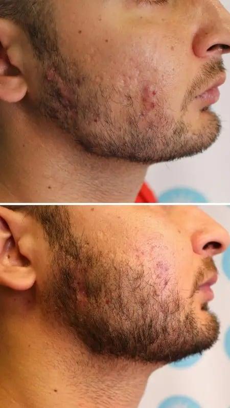 resultado de micropigmentacao facial masculina