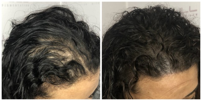 antes e depois de micropigmentacao capilar em cabelo cacheado