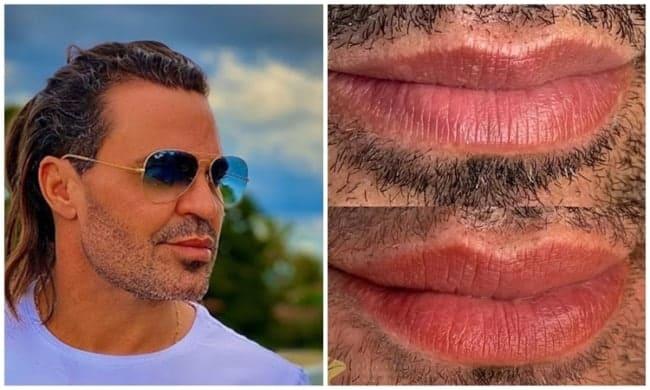antes e depois de micropigmentacao labial em homem