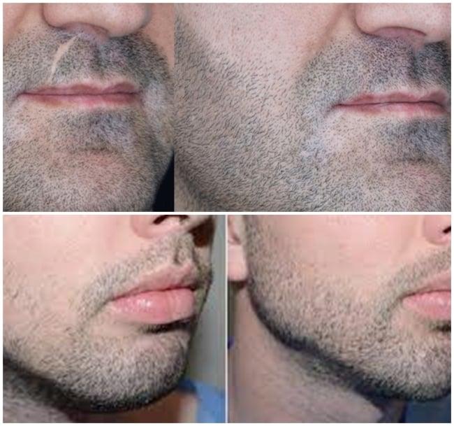 resultados de micropigmentacao masculina na barba