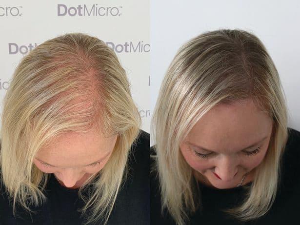 antes e depois de micropigmentacao capilar em cabelo loiro