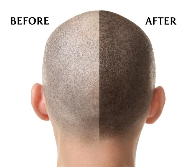 resultado de micropigmentacao capilar