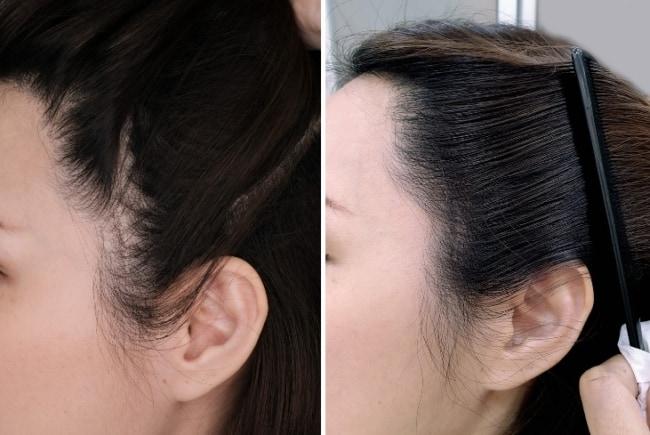 resultado de micropigmentacao capilar feminina