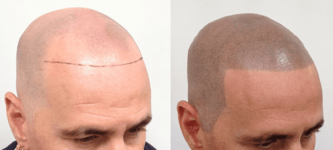 antes e depois de micropigmentacao masculina