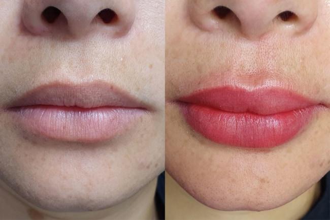 antes e depois de micropigmentacao na boca