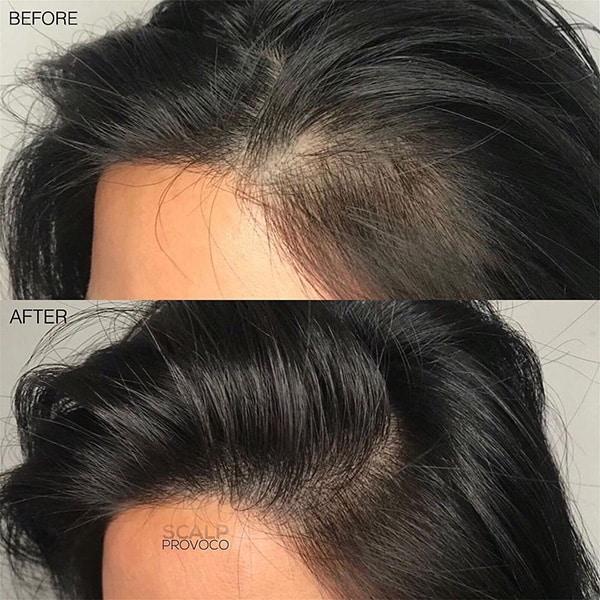 antes e depois de preenchimento com micropigmentacao capilar