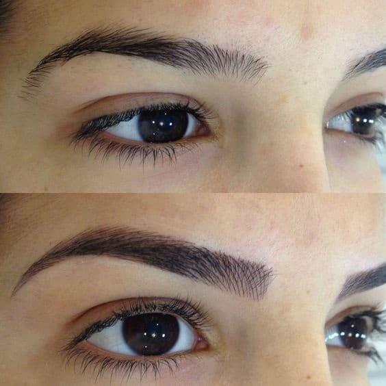 foto de antes e depois de correcao sobrancelhas